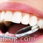 estetik diş doktorluğu, estetik diş hekimliği, estetik diş