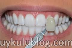 lamina diş fiyatları, Lamina diş kaplaması, lamina malzemesi