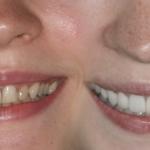 diş estetiği ameliyatı, diş estetiği nasıl yapılır, diş estetiği ameliyatı nedir