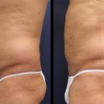 Liposuction nedir, Liposuction nasıl yapılır, Liposuction niye yapılır