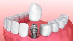 implant tedavisi, İmplant İstanbul, Diş tedavileri