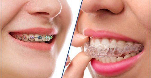 Profesyonel Estetik Diş Hekimliği