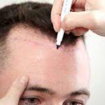 saç ekim merkezi, saç ekim doktoru, saç ekim merkezi ücretleri ne kadar