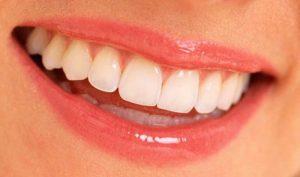 estetik diş, estetik diş yaptırma fiyatları, istanbul da estetik diş yaptırma fiyatları