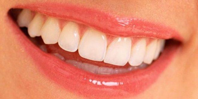 İstanbul Estetik Diş Fiyatları