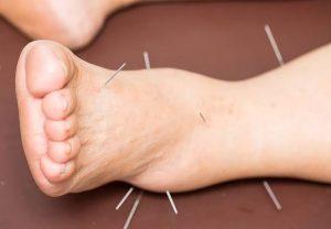 akupunktur nedir, akupunktur tedavisi, akupunktur ile tedaviler