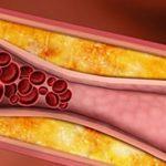 Kolesterol, Kolesterol belirtileri, Kolesterol tedavisi