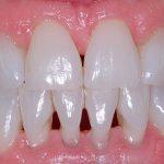 diş eti hastalıkları, diş eti hastalığı belirtisi, diş eti hastalık tedavisi