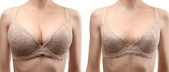 Göğüs Estetiği Ameliyatlarında Kullanılacak Teknikler Nasıl Belirlenir?