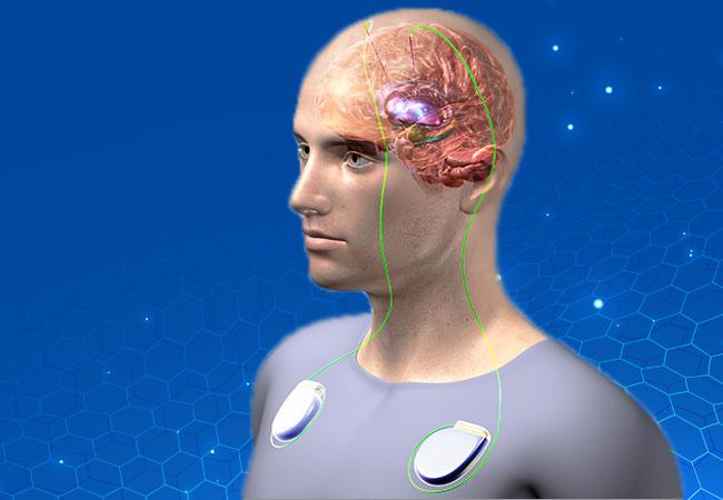 beyin pili kullanımı, beyin pili ile tedavi, beyin pili neden takılır