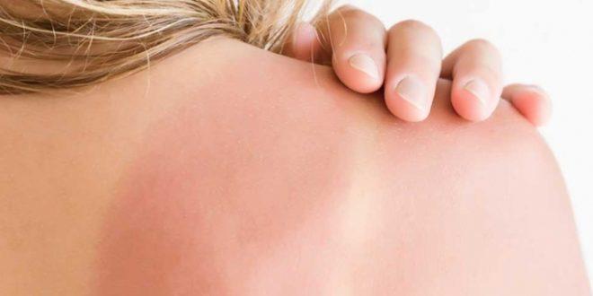 Güneş yanığı nasıl tedavi edilir?