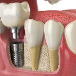 implant yapımı, doğal diş alternatifi, implant tedavisi